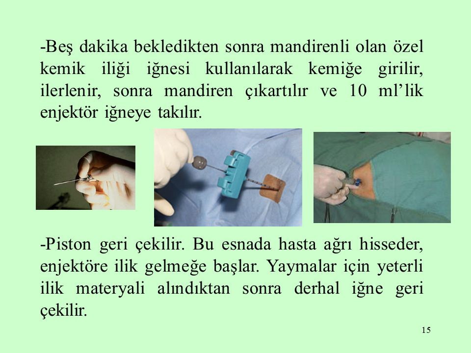 -Beş dakika bekledikten sonra mandirenli olan özel kemik iliği iğnesi kullanılarak kemiğe girilir, ilerlenir, sonra mandiren çıkartılır ve 10 ml'lik enjektör iğneye takılır.