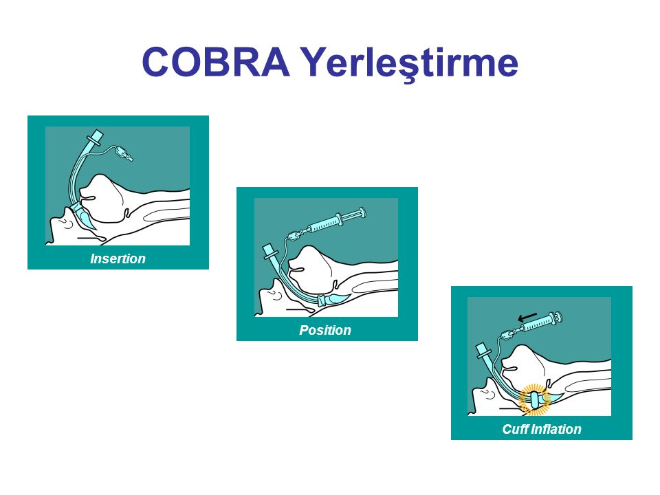 COBRA Yerleştirme Insertion Position Cuff Inflation