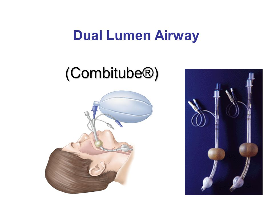 Dual Lumen Airway (Combitube®)