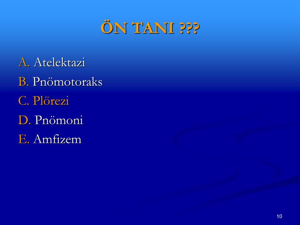 ÖN TANI A. Atelektazi B. Pnömotoraks C. Plörezi D. Pnömoni