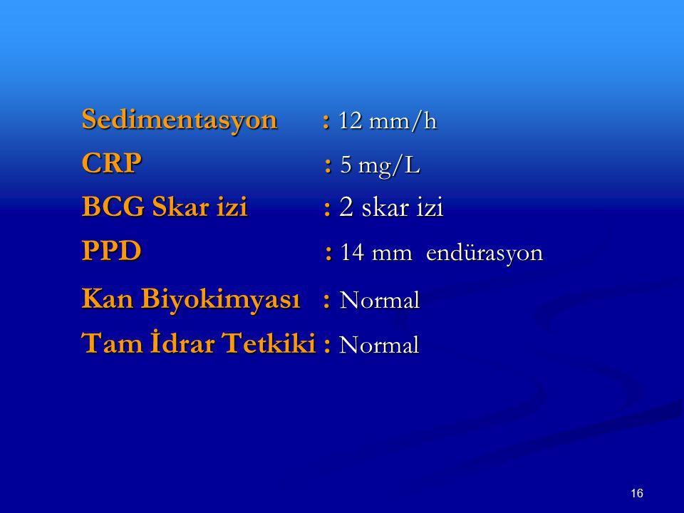 Sedimentasyon : 12 mm/h CRP : 5 mg/L. BCG Skar izi : 2 skar izi.