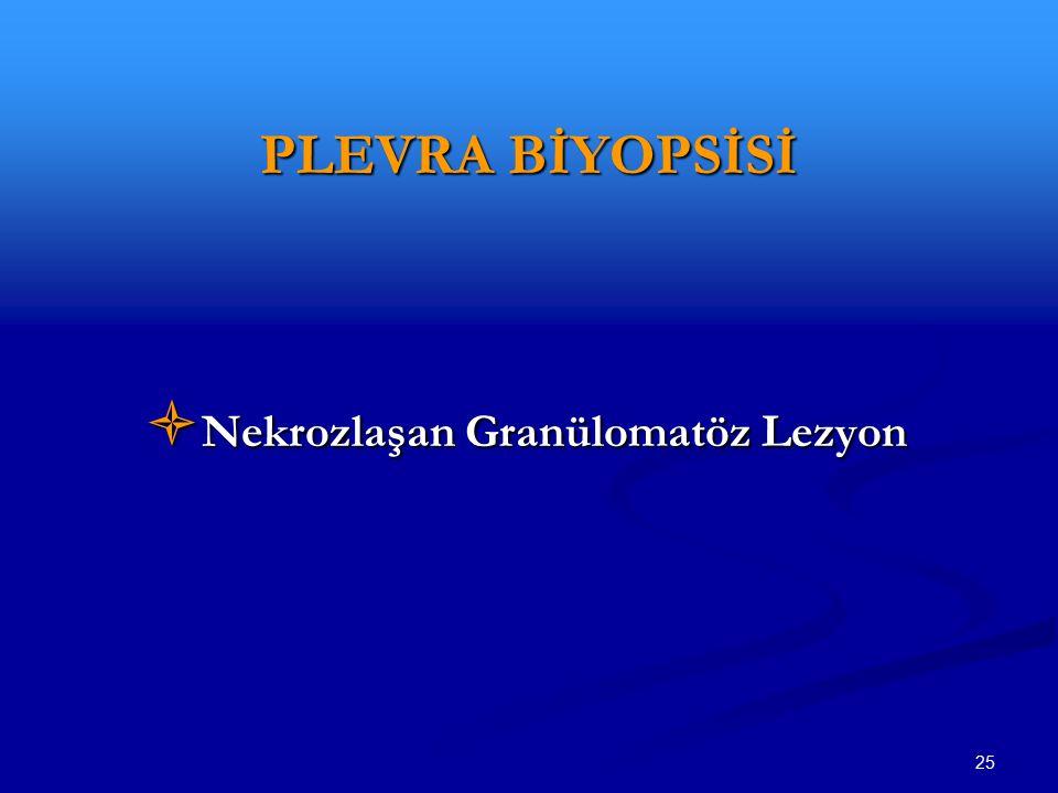 Nekrozlaşan Granülomatöz Lezyon