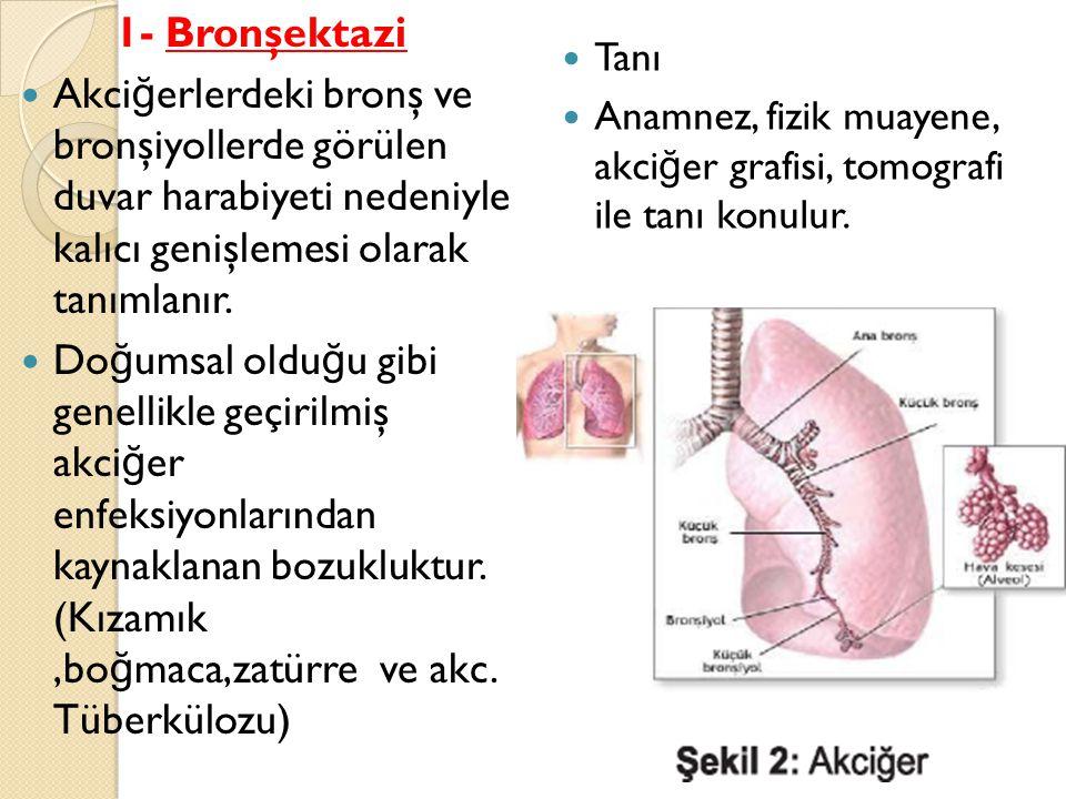 1- Bronşektazi Akciğerlerdeki bronş ve bronşiyollerde görülen duvar harabiyeti nedeniyle kalıcı genişlemesi olarak tanımlanır.