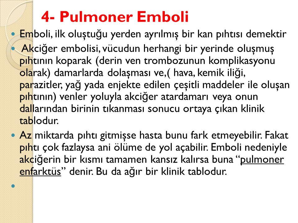 4- Pulmoner Emboli Emboli, ilk oluştuğu yerden ayrılmış bir kan pıhtısı demektir.