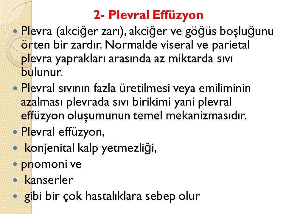 2- Plevral Effüzyon