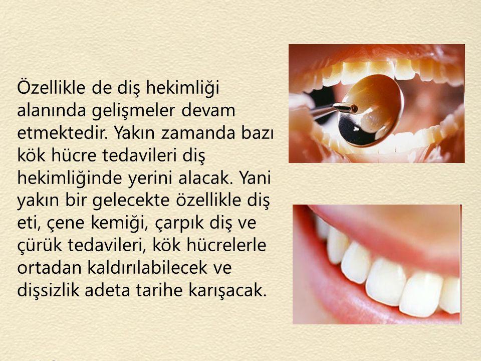 Özellikle de diş hekimliği alanında gelişmeler devam etmektedir