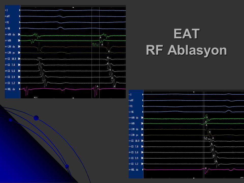 EAT RF Ablasyon