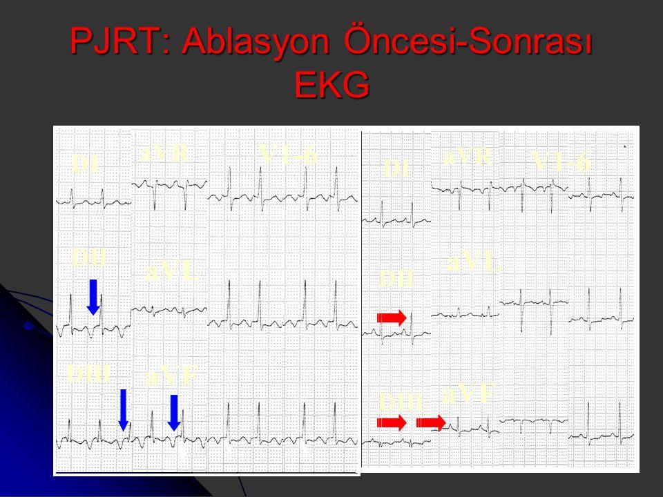 PJRT: Ablasyon Öncesi-Sonrası EKG