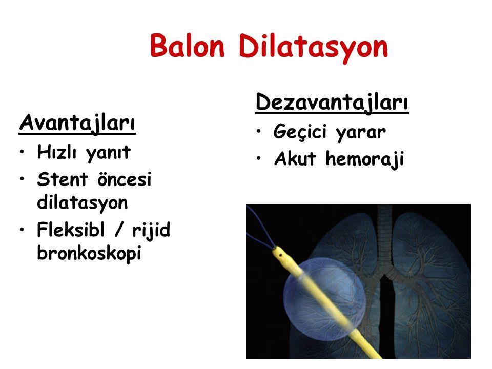 Balon Dilatasyon Dezavantajları Avantajları Geçici yarar Akut hemoraji