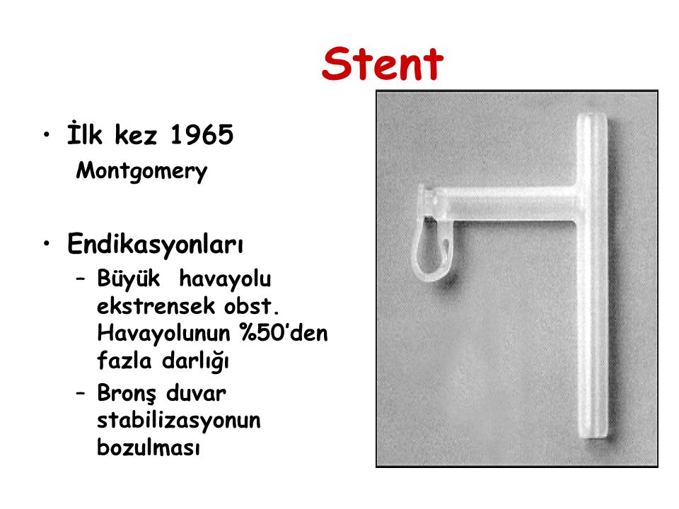 Stent İlk kez 1965 Endikasyonları Montgomery