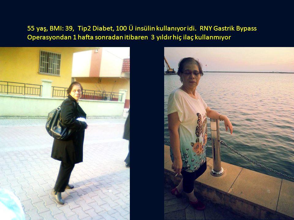 55 yaş, BMI: 39, Tip2 Diabet, 100 Ü insülin kullanıyor idi