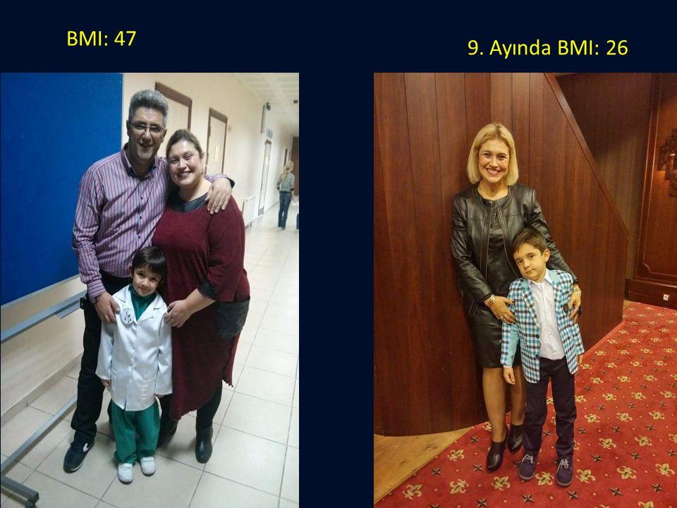 BMI: 47 9. Ayında BMI: 26