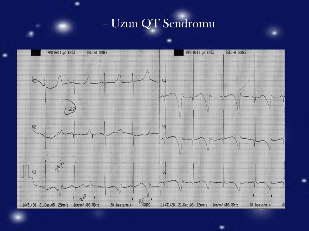 Uzun QT Sendromu