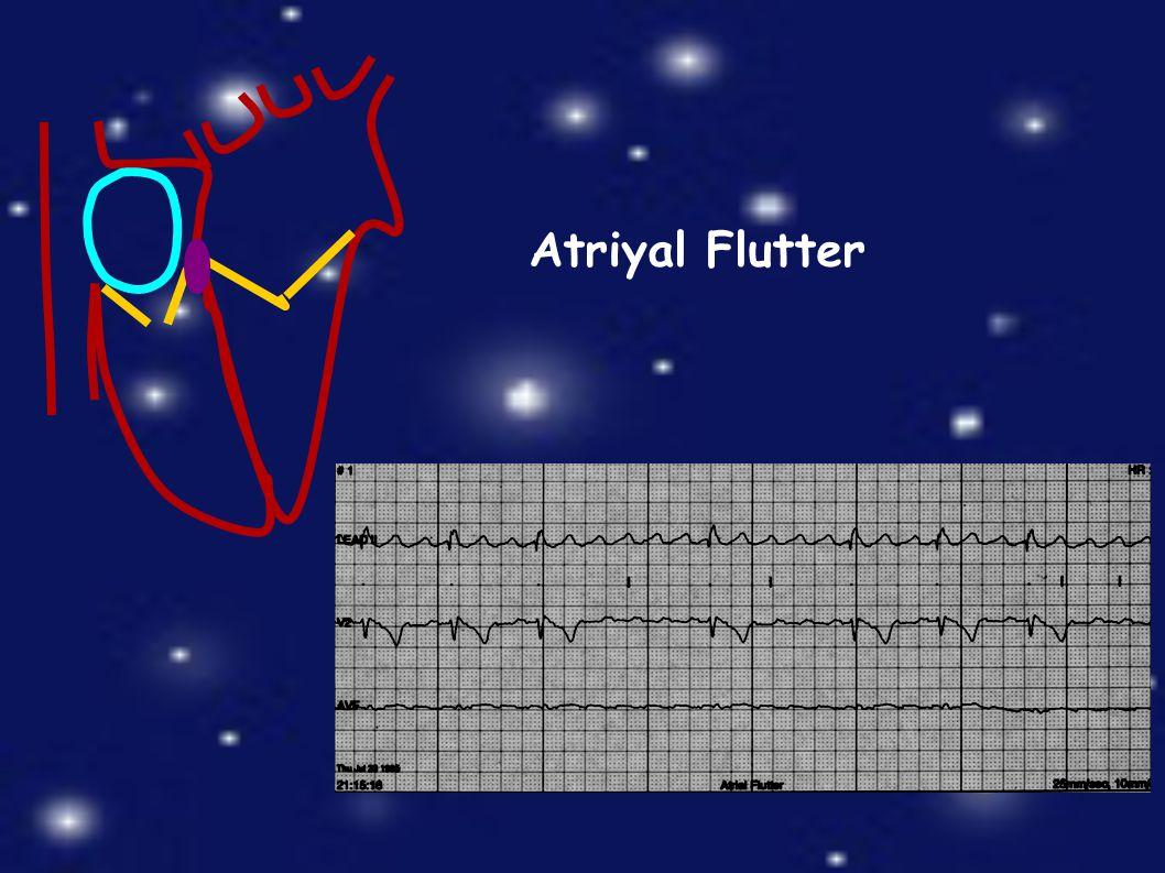 Atriyal Flutter