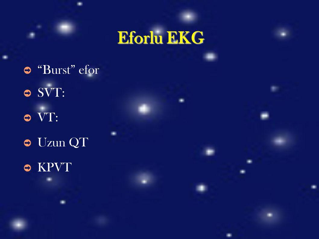 Eforlu EKG Burst efor SVT: VT: Uzun QT KPVT