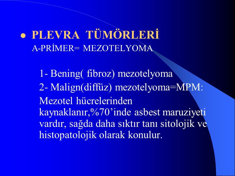 2- Malign(diffüz) mezotelyoma=MPM: