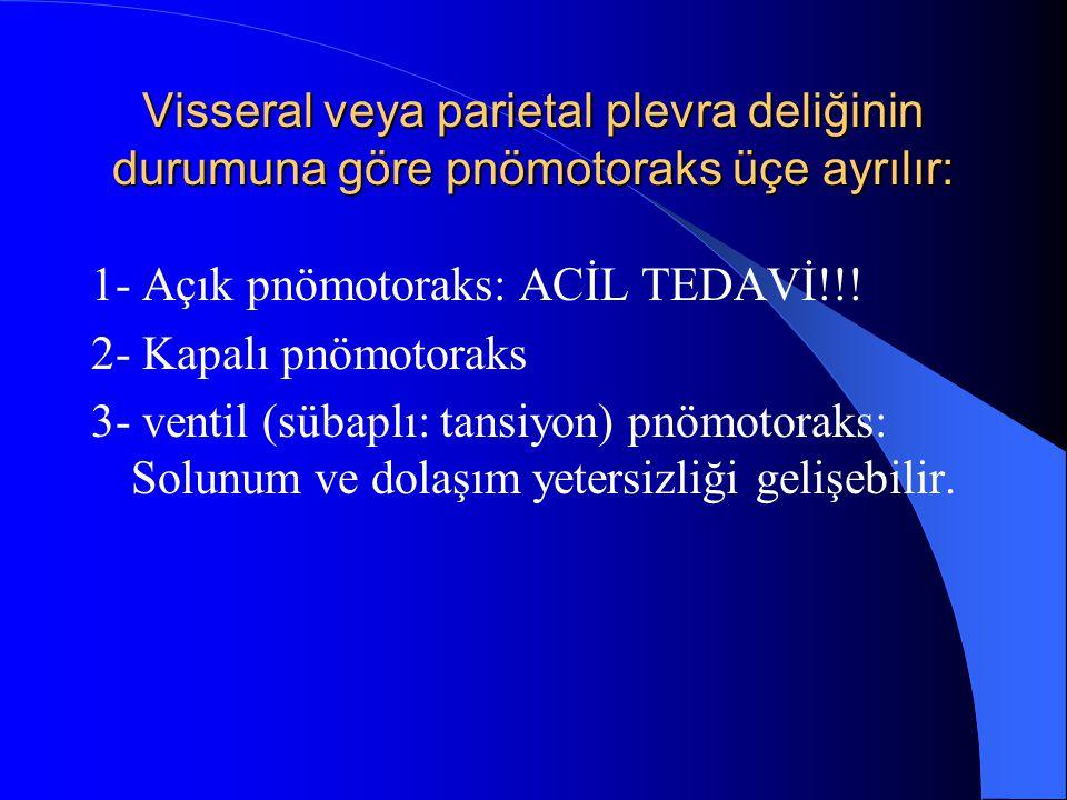 Visseral veya parietal plevra deliğinin durumuna göre pnömotoraks üçe ayrılır: