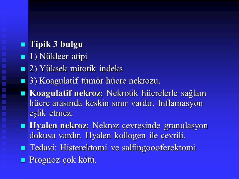 Tipik 3 bulgu 1) Nükleer atipi. 2) Yüksek mitotik indeks. 3) Koagulatif tümör hücre nekrozu.