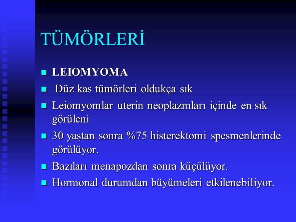 TÜMÖRLERİ LEIOMYOMA Düz kas tümörleri oldukça sık