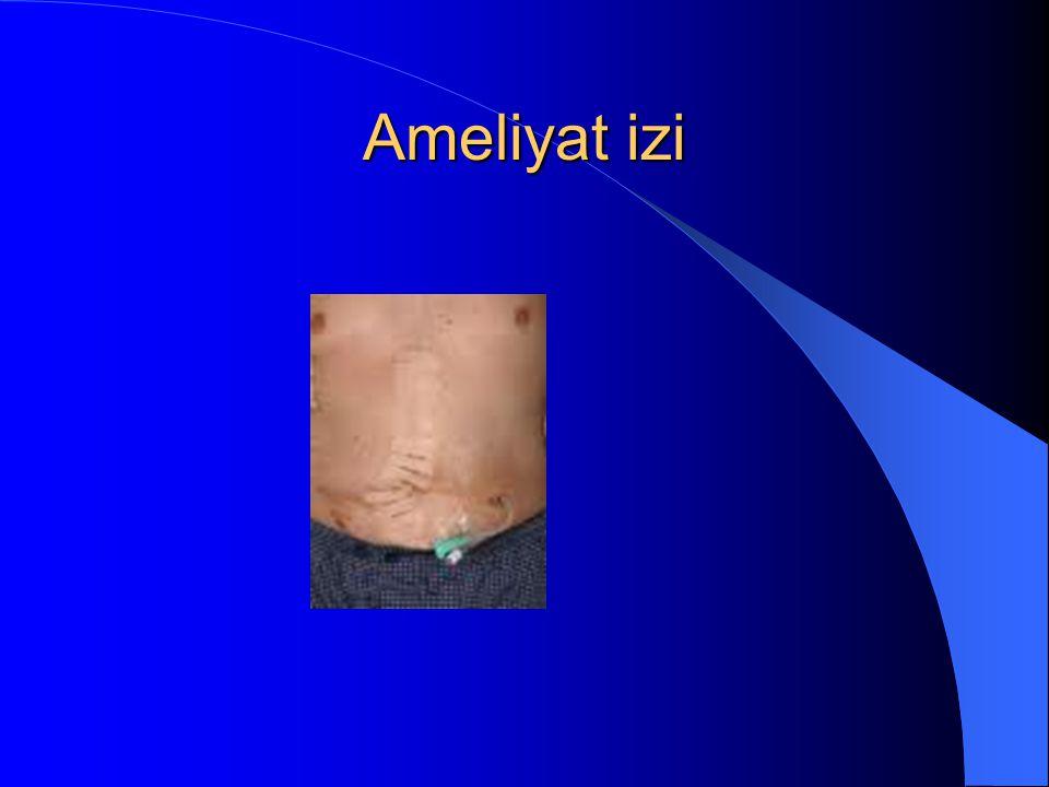 Ameliyat izi
