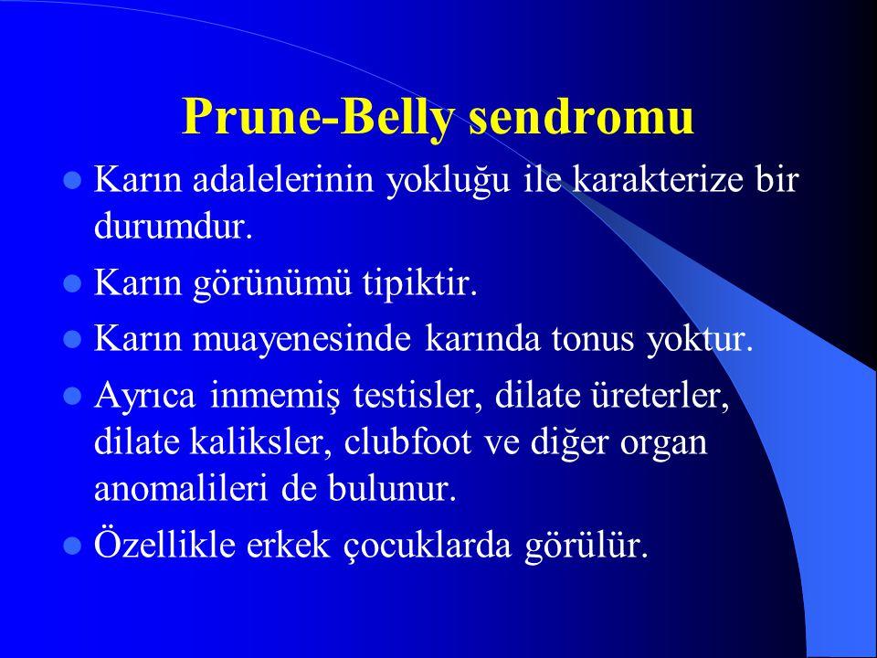 Prune-Belly sendromu Karın adalelerinin yokluğu ile karakterize bir durumdur. Karın görünümü tipiktir.