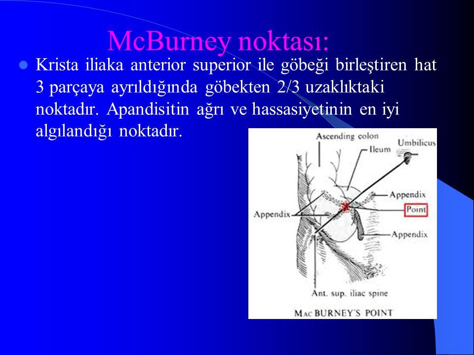 McBurney noktası: