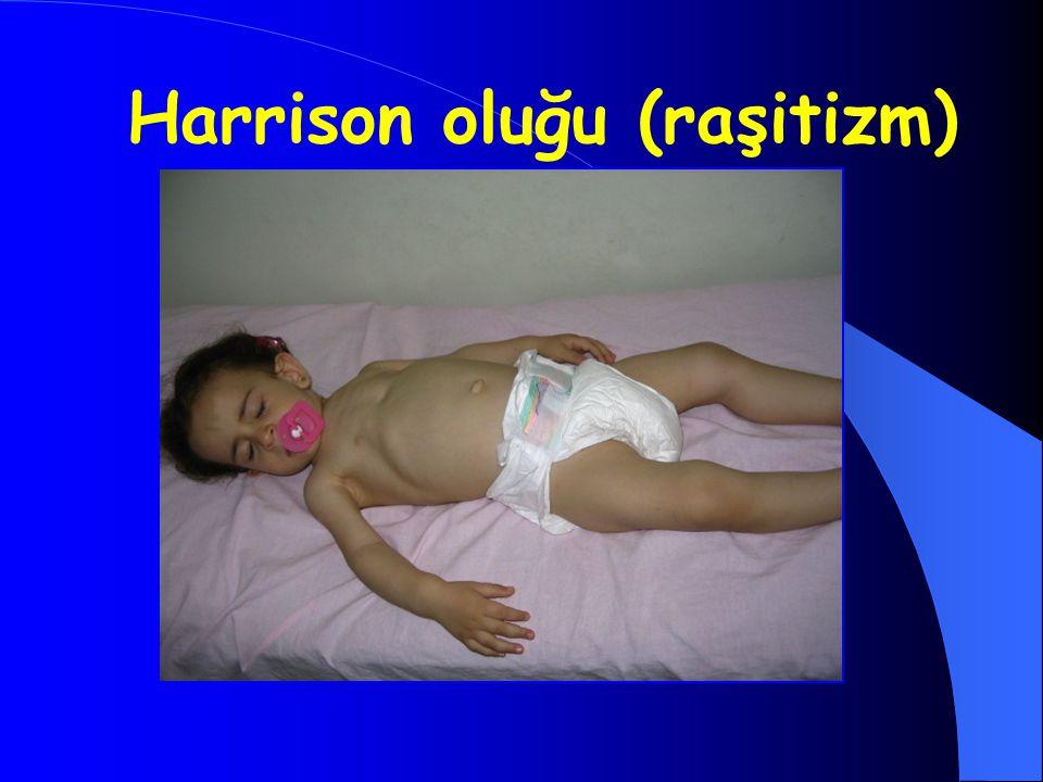 Harrison oluğu (raşitizm)