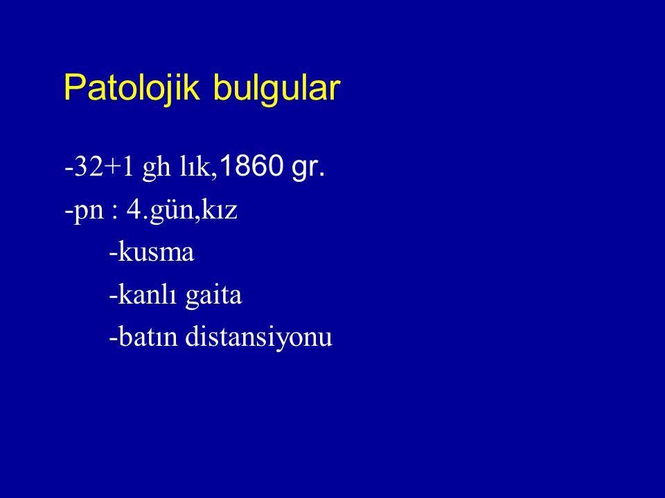 Patolojik bulgular -32+1 gh lık,1860 gr. -pn : 4.gün,kız -kusma -kanlı gaita -batın distansiyonu