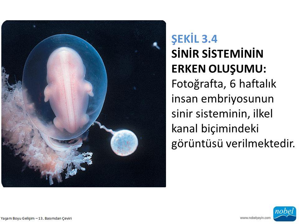 ŞEKİL 3.4