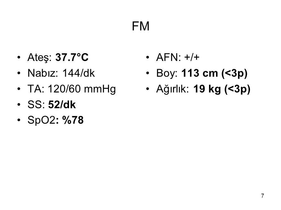 FM Ateş: 37.7°C Nabız: 144/dk TA: 120/60 mmHg SS: 52/dk SpO2: %78