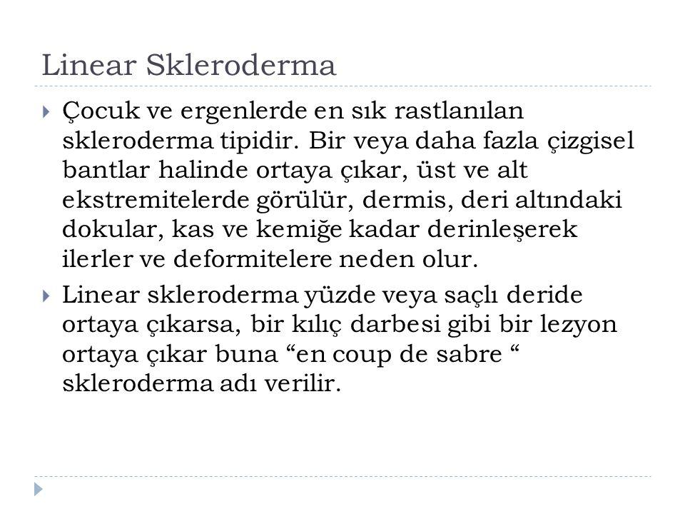 Linear Skleroderma