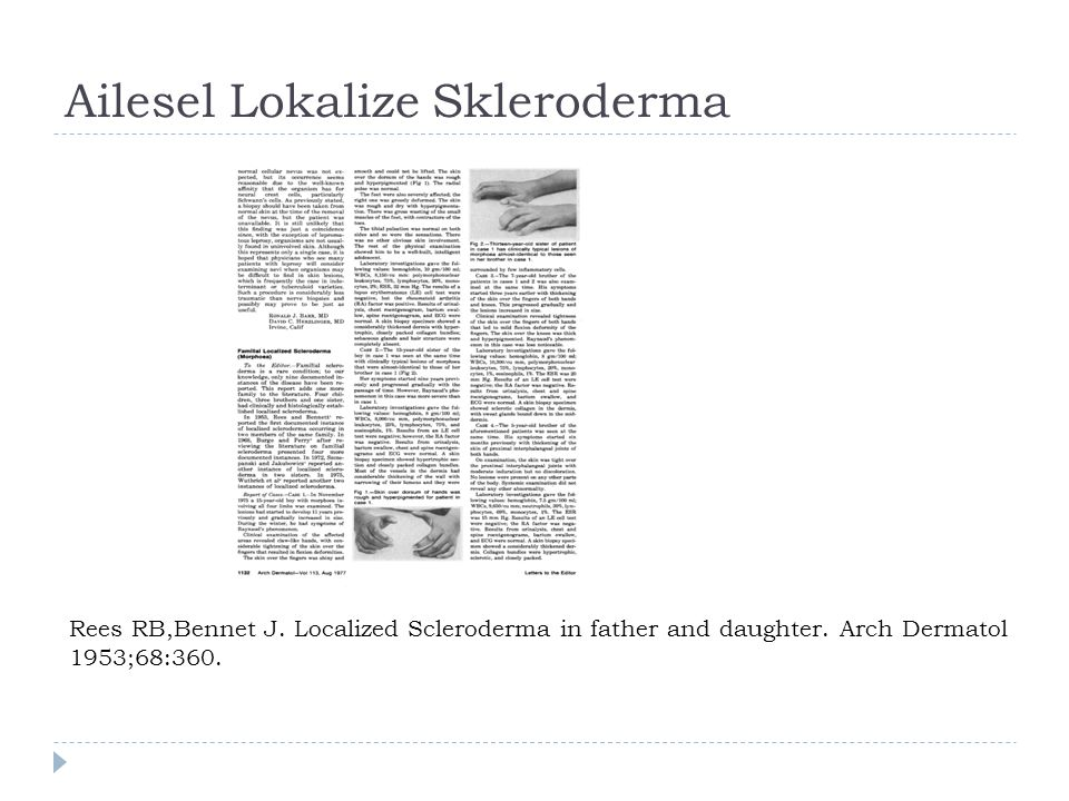 Ailesel Lokalize Skleroderma