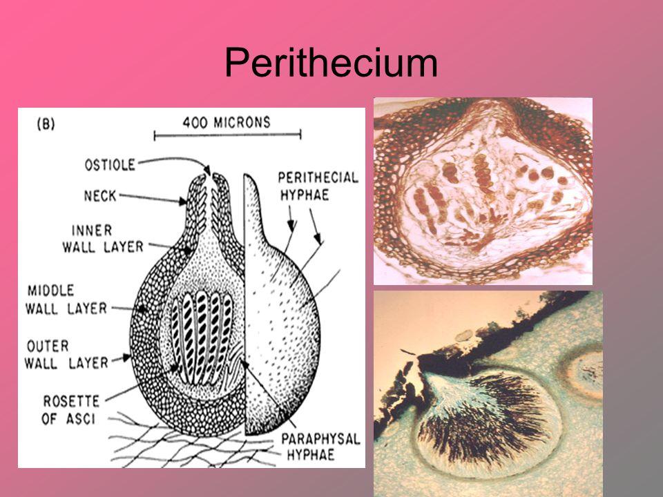 Perithecium