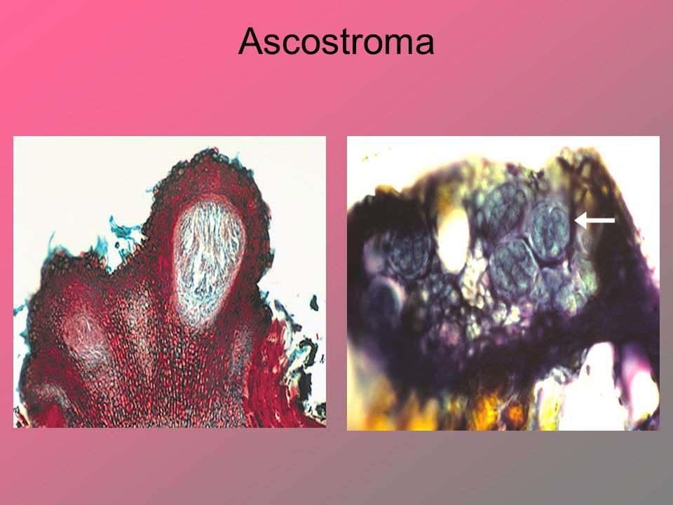 Ascostroma