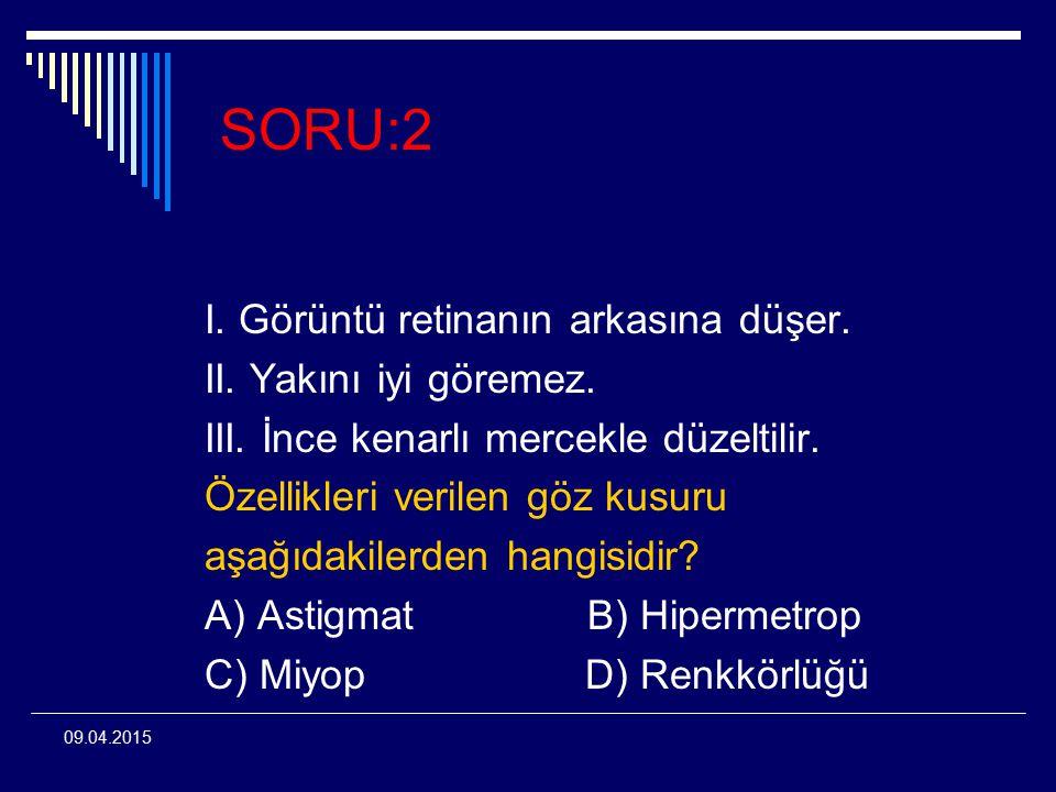 SORU:2 I. Görüntü retinanın arkasına düşer. II. Yakını iyi göremez.