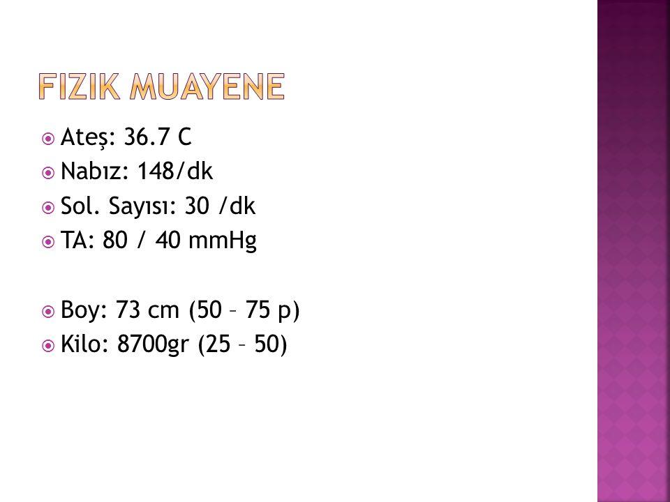Fizik Muayene Ateş: 36.7 C Nabız: 148/dk Sol. Sayısı: 30 /dk