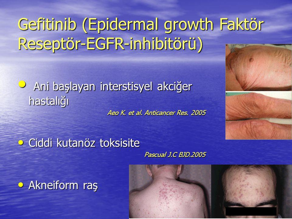 Gefitinib (Epidermal growth Faktör Reseptör-EGFR-inhibitörü)