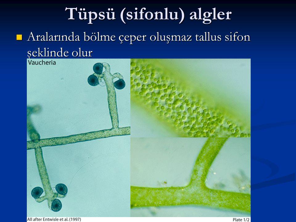 Tüpsü (sifonlu) algler