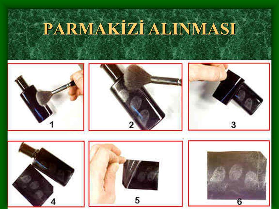 PARMAKİZİ ALINMASI