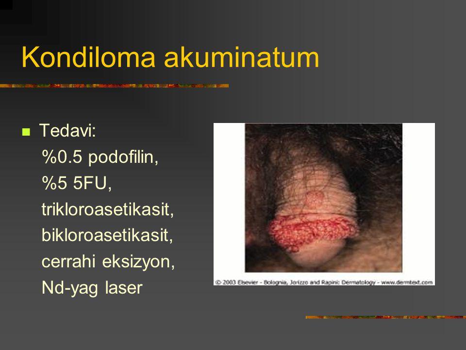 Kondiloma akuminatum Tedavi: %0.5 podofilin, %5 5FU,