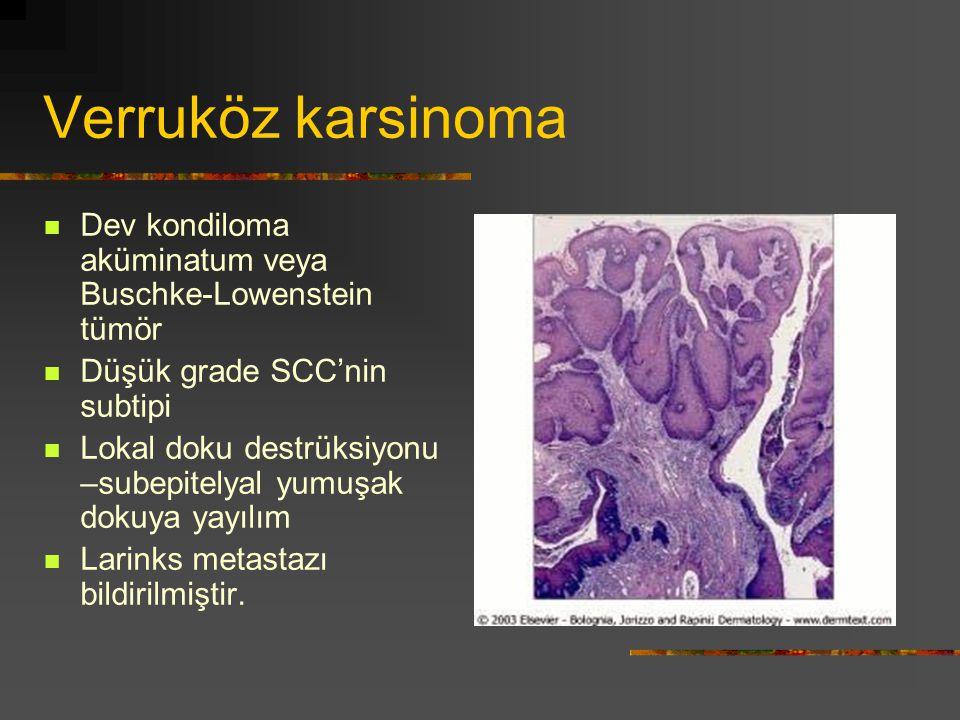 Verruköz karsinoma Dev kondiloma aküminatum veya Buschke-Lowenstein tümör. Düşük grade SCC'nin subtipi.