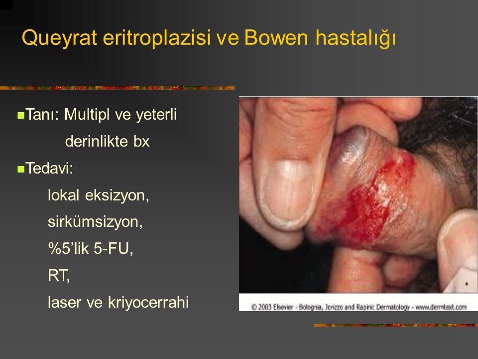 Queyrat eritroplazisi ve Bowen hastalığı