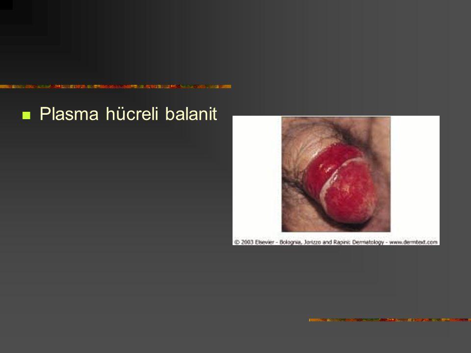 Plasma hücreli balanit