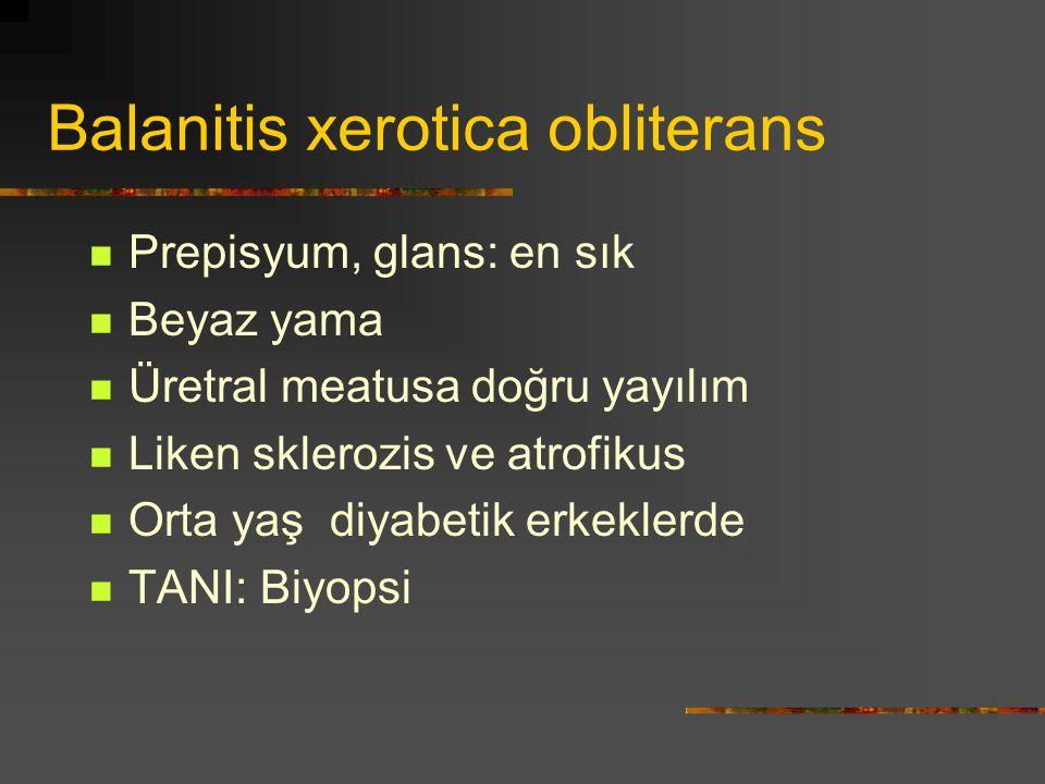 Balanitis xerotica obliterans