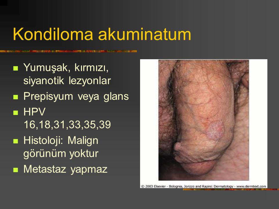 Kondiloma akuminatum Yumuşak, kırmızı, siyanotik lezyonlar