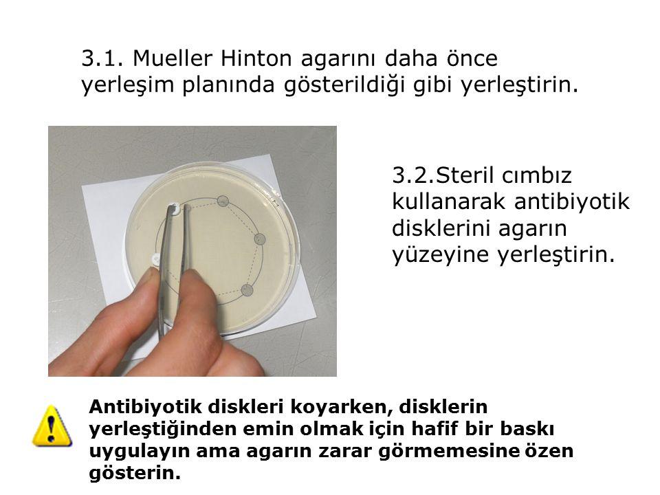 3.1. Mueller Hinton agarını daha önce yerleşim planında gösterildiği gibi yerleştirin.