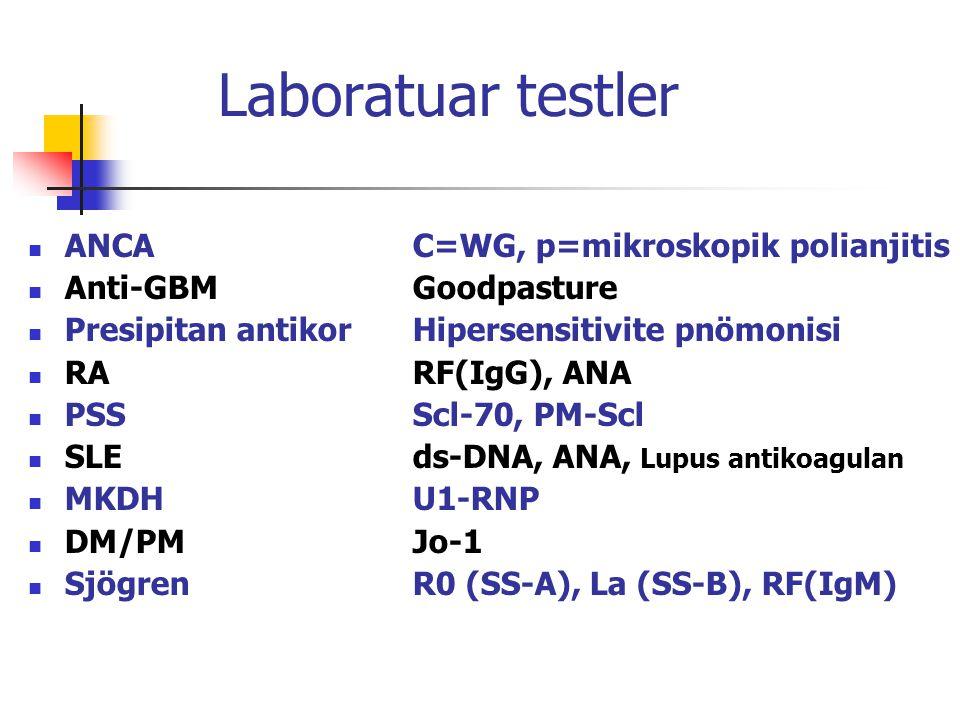 Laboratuar testler ANCA C=WG, p=mikroskopik polianjitis