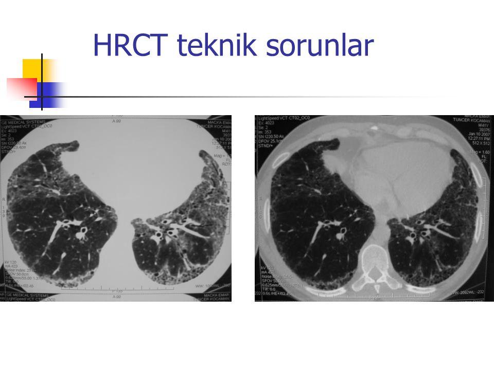 HRCT teknik sorunlar
