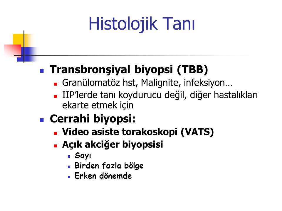 Histolojik Tanı Transbronşiyal biyopsi (TBB) Cerrahi biyopsi: