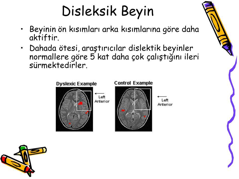 Disleksik Beyin Beyinin ön kısımları arka kısımlarına göre daha aktiftir.